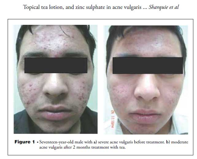 Before and after picture of using green tea to treat acne