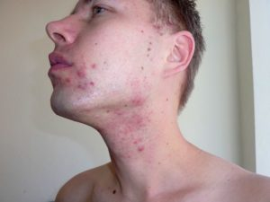 Seppo Puusa acne