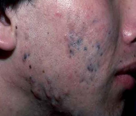 drug_induced_hyperpigmentation-7