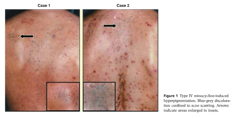 Long-Term Minocycline Treatment May Turn Your Skin Blue