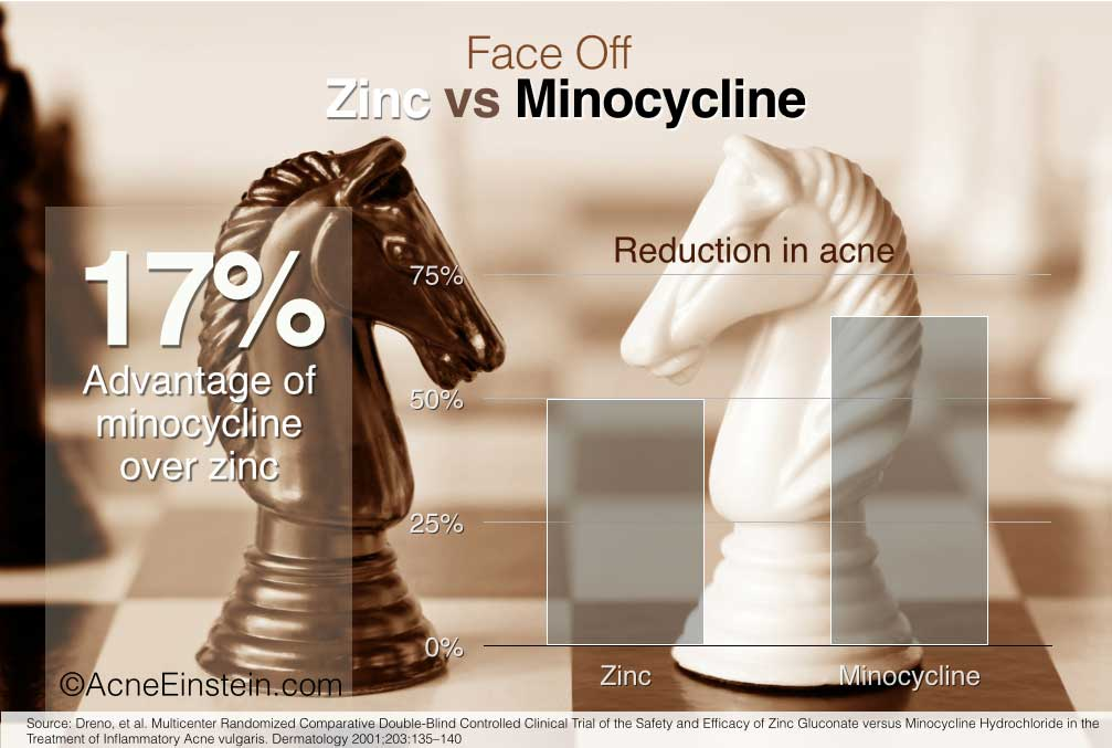 Study shows zinc was almost as effective as minocycline in acne