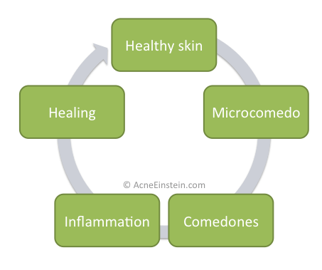 acne-cycle