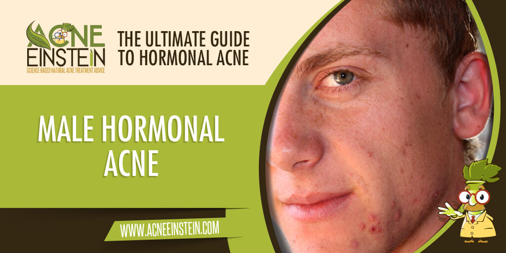 Male Hormonal Acne – The Ultimate Guide To Hormonal Acne