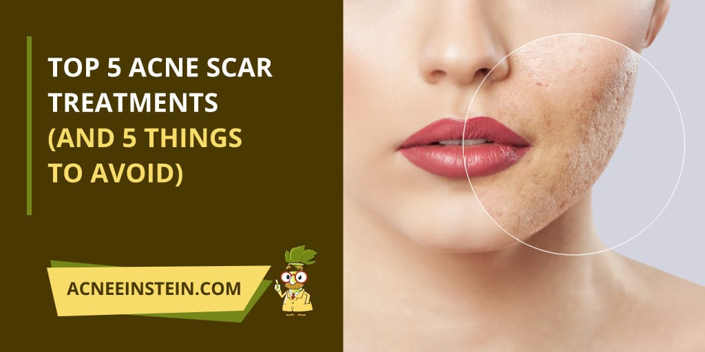 Top 5 Acne Scar Treatments (And 5 Things to Avoid) - Acne Einstein