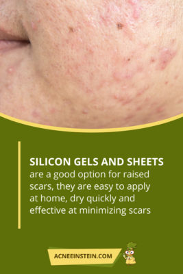 Top 5 Acne Scar Treatments And 5 Things To Avoid Acne Einstein