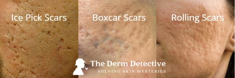 Top 5 Acne Scar Treatments (And 5 Things to Avoid) - Acne