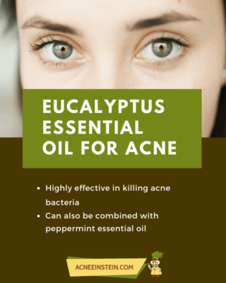 eukalyptus oil for acne