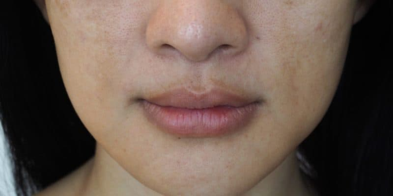 Closeup of a woman with dark spots.