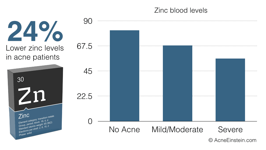 Acne patients have 24% lower zinc levels than people with clear skin