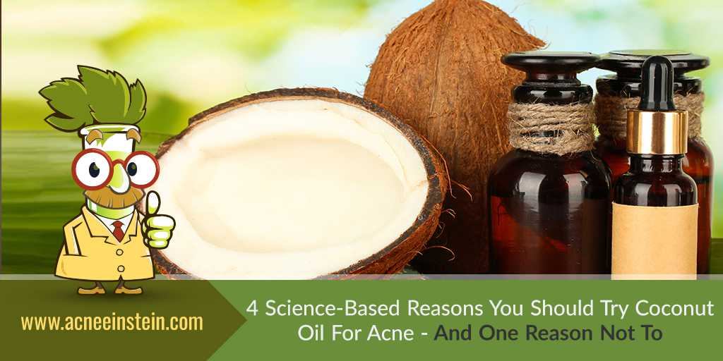 4 Science-Based Reasons To Use Coconut Oil For Acne – And One Reason Not To