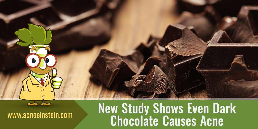 New Study Shows Even Dark Chocolate Causes Acne