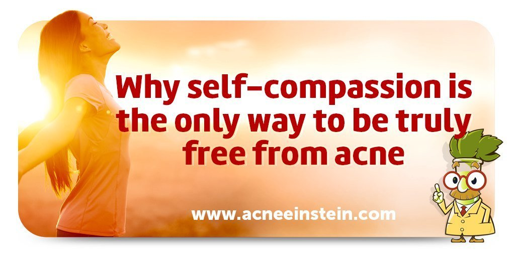 Why Self-Compassion Is The Only Way To Be Free From Acne