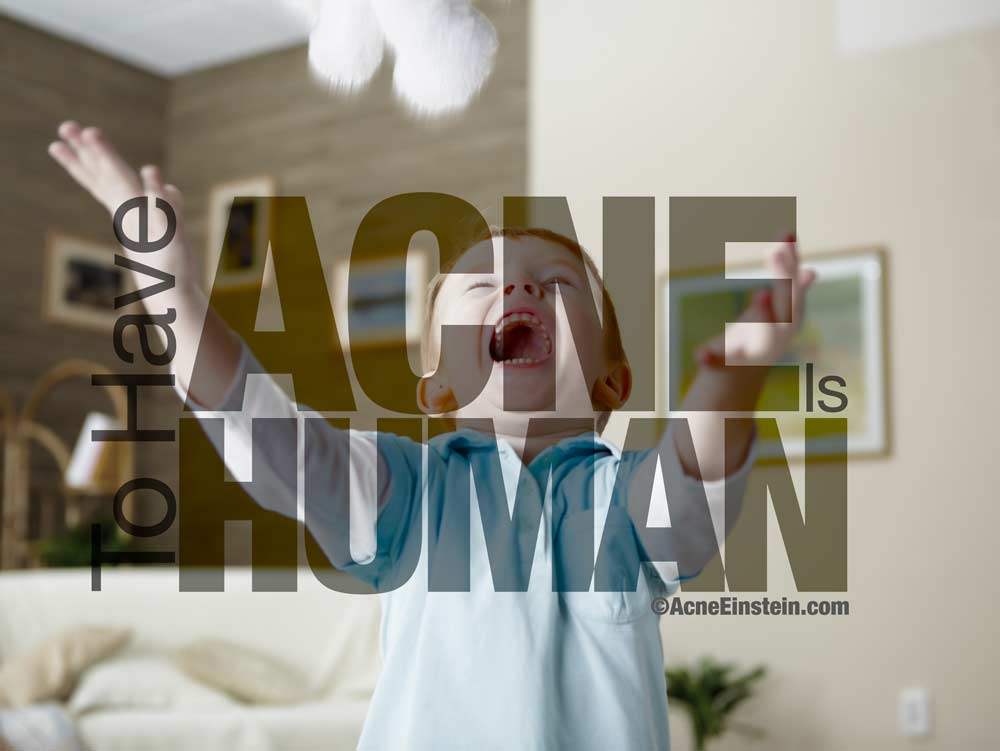 To Have Acne Is Human